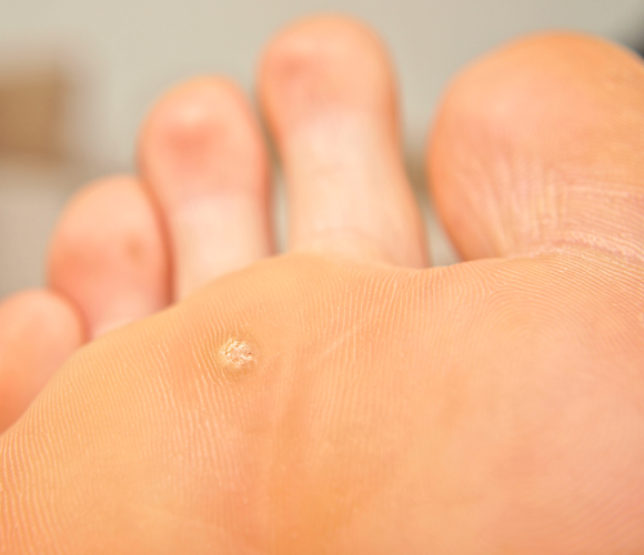 Warts are most common on people's hands and feet.