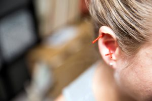 Auricular acupuncture stimulates nourishing points located in the ear.