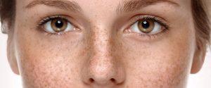 Revisa tu piel con frecuencia.
